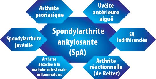Spondylarthrite ankylosante spondylite - Information Sant